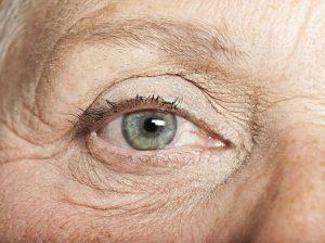Lão hóa gây nên khô mắt