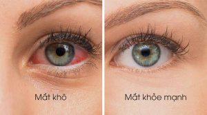 Nhiều người thường chủ quan trước tình trạng khô mắt